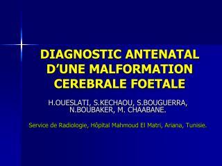 DIAGNOSTIC ANTENATAL D'UNE MALFORMATION CEREBRALE FOETALE