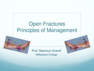 Open  Fractures Principles of Management