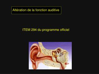 Altération de la fonction auditive ITEM 294 du programme officiel