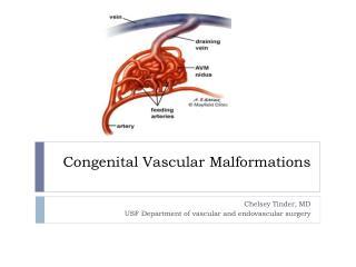 Congenital Vascular Malformations