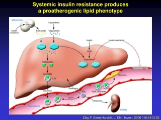 Insulin Resistance and Atherosclerosis