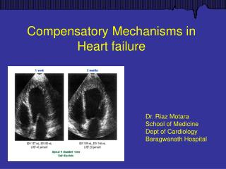 Compensatory Mechanisms in Heart failure