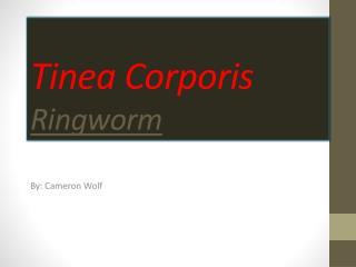 Tinea Corporis  Ringworm