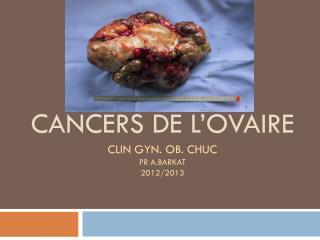 CANCERs  DE L'OVAIRE clin  gyn .  ob . CHUC Pr A.BARKAT 2012/2013