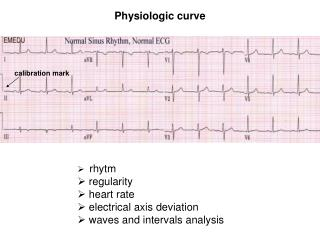 Physiologic curve