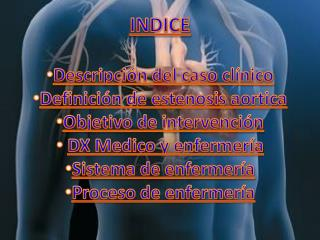 INDICE Descripción  del caso clínico Definición de estenosis aortica Objetivo de intervención
