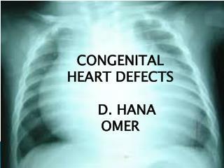 CONGENITAL HEART DEFECTS    D. HANA OMER