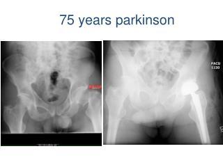 75 years  parkinson