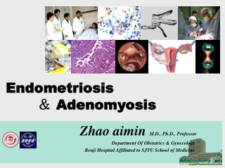 Endometriosis  &  Adenomyosis