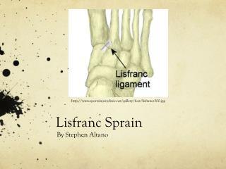 Lisfranc  Sprain