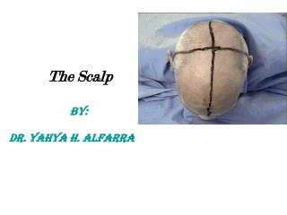 The Scalp BY:  DR. Yahya h. Alfarra