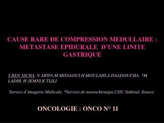 CAUSE RARE DE COMPRESSION MEDULLAIRE: METASTASE EPIDURALE D'UNE LINITE GASTRIQUE