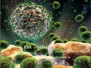 VIH  -- SIDA