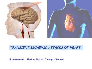 TRANSIENT ISCHEMIC ATTACKS OF HEART