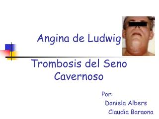 Angina de Ludwig Trombosis del Seno Cavernoso