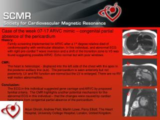Case of the week 07-17 ARVC mimic – congenital partial absence of the pericardium