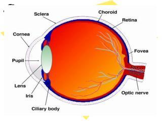 Developmental cataract