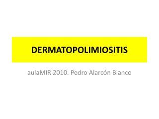 DERMATOPOLIMIOSITIS