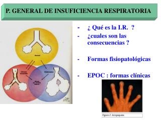 P. GENERAL DE INSUFICIENCIA RESPIRATORIA