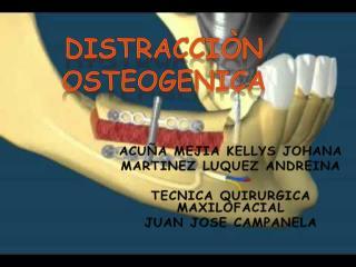 DISTRACCIÒN OSTEOGENICA
