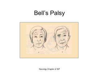 Bell s Palsy