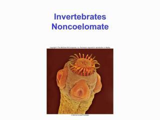Invertebrates Noncoelomate