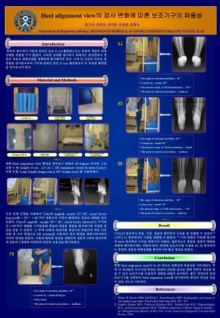 Heel alignment view 의 검사 변화에 따른 보조기구의 유용성