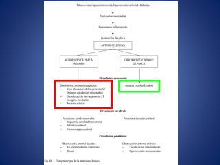Cardiopatía isquémica (arterioesclerosis coronaria)