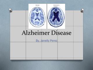 Alzheimer  D isease