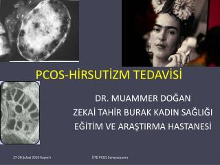 PCOS-HİRSUTİZM TEDAVİSİ