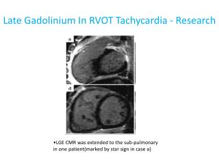 Late Gadolinium In  RVOT Tachycardia - Research