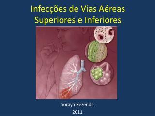 Infecções de Vias Aéreas Superiores e Inferiores