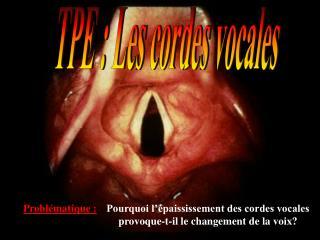TPE : Les cordes vocales