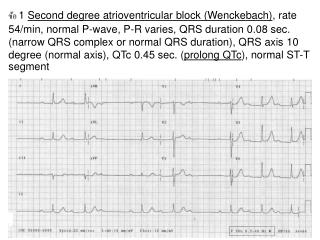 ข้อ  2 Sinus tachycardia , rate 100/min, Normal P-wave,