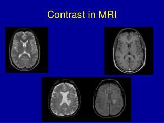 Contrast in MRI
