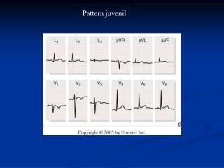 Pattern juvenil