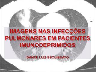 Imagens nas infec  es pulmonares em pacientes imunodepRimidos  Dante Luiz Escuissato