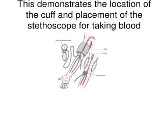 This demonstrates the location of the cuff and placement of the stethoscope for taking blood pressure