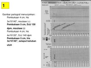"""Gambar partograf menunjukkan : Pembukaan  4 cm,  his 3x/10 '/40"""",  moulase (+)"""