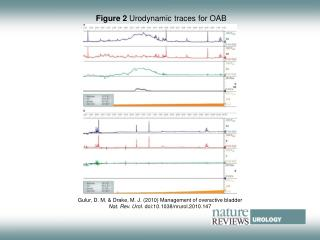 Figure 2  Urodynamic traces for OAB