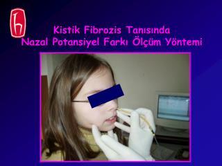 Kistik Fibrozis  Tanısında  Nazal Potansiyel Farkı Ölçüm Yöntemi