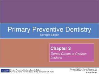 Chapter 3 Dental Caries to Carious Lesions