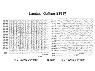 Landau-Kleffner 症候群