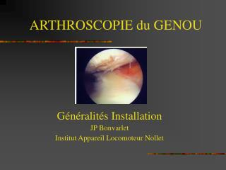 ARTHROSCOPIE du GENOU