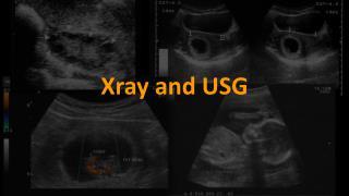 Xray and USG