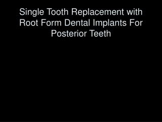 Single Tooth Replacement with Root Form Dental Implants For Posterior Teeth