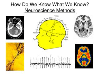 How Do We Know What We Know? Neuroscience Methods