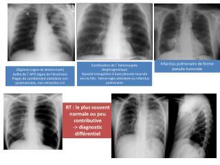 Surélévation de l ' hémicoupole diaphragmatique