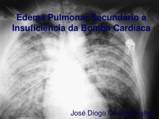 Edema Pulmonar Secundário à Insuficiência da Bomba Cardíaca