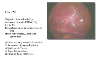Caso 20 Mujer de 16 años de edad con amenorrea primaria, FSH de 35 y LH de 23.